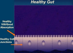 5R Protocol, Gut healing, Leaky Gut