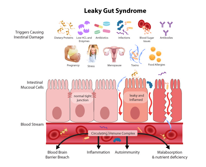 Leaky Gut, intestinal permeability